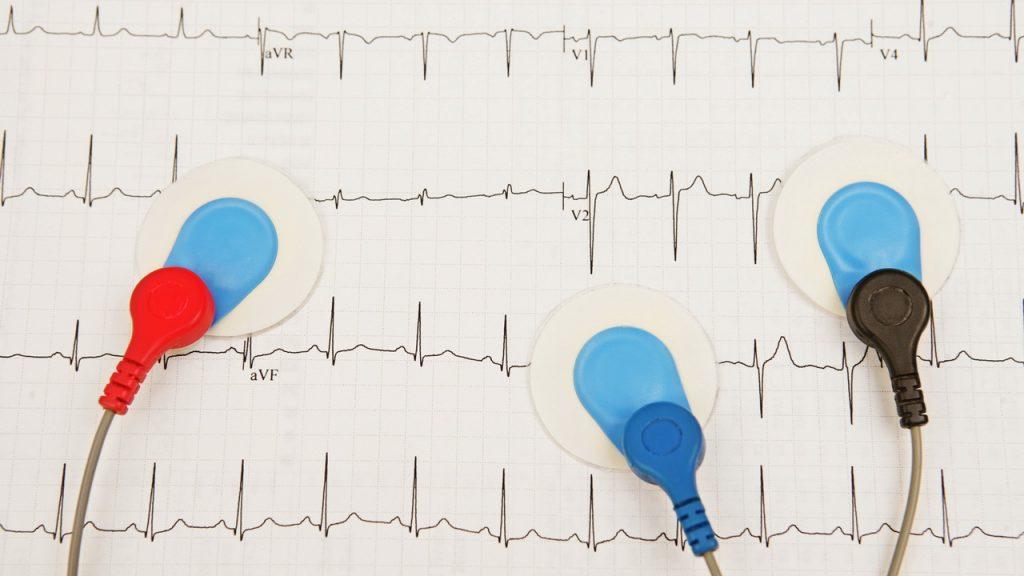 REGISTERED EKG SPECIALIST (RES)